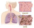 πνευμονίας