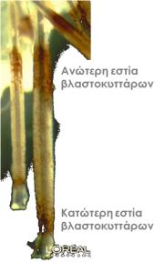 Τα αίτια και η θεραπεία της τριχόπτωσης