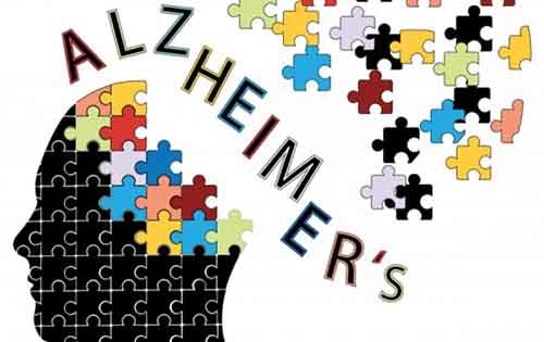 Οι 5 ερωτήσεις που αποκαλύπτουν το Αλτσχάιμερ σε πρώιμο στάδιο