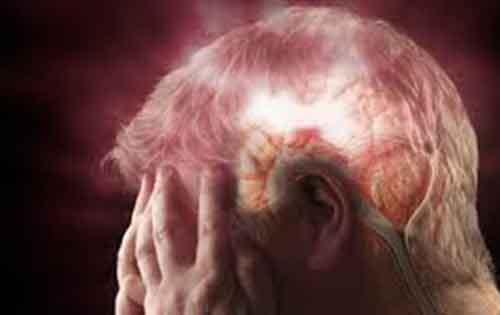 Τι πρέπει να κάνετε σε περίπτωση εγκεφαλικού επεισοδίου. Πρώτες βοήθειες για εγκεφαλικό