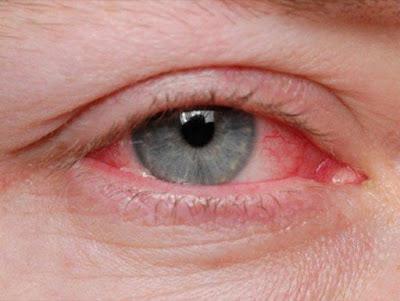 Τσίμπλα, δάκρυα, κόκκινα ερεθισμένα μάτια οφείλονται σε επιπεφυκίτιδα