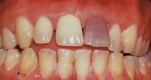Απορρόφηση οδοντικής ρίζας, με πόνο, δυσχρωμία και κινητικότητα δοντιού