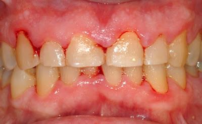 Ματώνουν τα ούλα σας; Μήπως κουνιούνται τα δόντια σας;