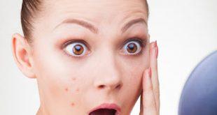 Δερματικά προβλήματα που μας προειδοποιούν για τη συνολική μας υγεία