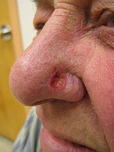 Ο συχνότερος καρκίνος του δέρματος είναι το Βασικοκυτταρικό Καρκίνωμα. Πως μπορεί να προληφθεί; (video)