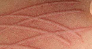 Μπορεί να γράψετε στο δέρμα σας, ασκώντας πίεση; Τι είναι ο δερμογραφισμός και πως αντιμετωπίζεται;