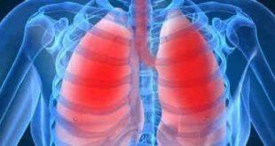 Λογισμικό τεχνητής νοημοσύνης προβλέπει πότε θα πεθάνουν οι ασθενείς με πνευμονική υπέρταση