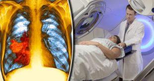 Μεγάλες ελπίδες για τους ασθενείς με καρκίνο του πνεύμονα νέου θεραπευτικού συνδυασμού