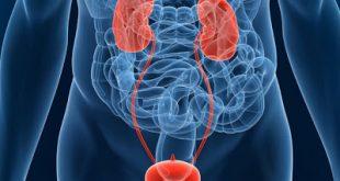 Νέα θεραπεία ασθενών με τοπικά προχωρημένο ή μεταστατικό ουροθηλιακό καρκίνωμα (mUC)