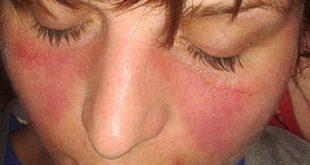 Συστηματικός Ερυθηματώδης Λύκος, με εξάνθημα στο πρόσωπο, συνεχή πυρετό, πόνο στις αρθρώσεις, κόπωση
