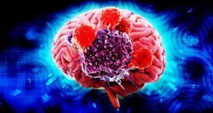 Ελληνική συμμετοχή στις νέες ανακαλύψεις για το γενετικό υπόβαθρο καρκίνων