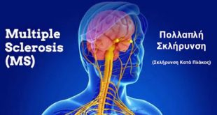 Σημαντική Έρευνα Γνώμης Ασθενών με Σκλήρυνση κατά Πλάκας