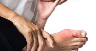 Η αύξηση στο ουρικό οξύ ονομάζεται υπερουριχαιμία. Τι μπορεί να προκαλέσει, ποια τα αίτια και πώς αντιμετωπίζεται;