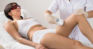 Με νέα εγκύκλιο το Υπουργείο ξαναεπιτρέπει σε αισθητικούς να χρησιμοποιούν laser αποτρίχωσης