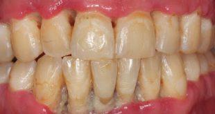 Έντονη κακοσμία, μεταλλική γεύση μπορεί να οφείλονται σε οξεία ελκονεκρωτική ουλίτιδα