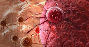 Πνευμονικές, ηπατικές, οστικές, εγκεφαλικές μεταστάσεις του καρκίνου. Mεταστάσεις ανάλογα με την θέση του όγκου