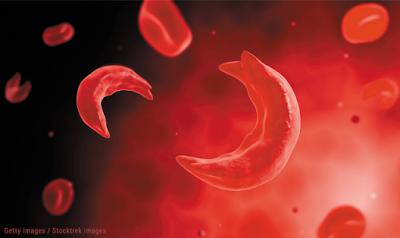 Δρεπανοκυτταρική Αναιμία και Μικροδρεπανοκυτταρική Αναιμία