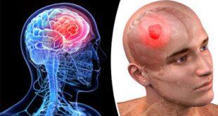 Ζάλη, πονοκέφαλος, ναυτία, αστάθεια, σπασμοί μπορεί να οφείλονται σε όγκο - καρκίνο στον εγκέφαλο. Παράγοντες κινδύνου