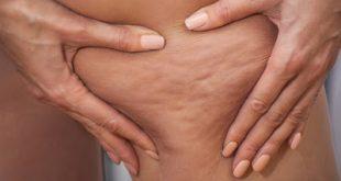 Κυτταρίτιδα: Τι είναι, τα αίτια. Πώς αντιμετωπίζεται με διατροφή και με άσκηση