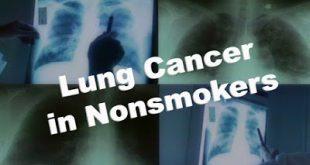 Και οι μη καπνιστές κινδυνεύουν από καρκίνο του πνεύμονα