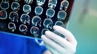 Οι δύο κυριότερες αιτίες απώλειας της ζωής είναι οι καρδιοπάθειες και τα εγκεφαλικά και αναπηρίας οι πόνοι στη μέση και οι ημικρανίες