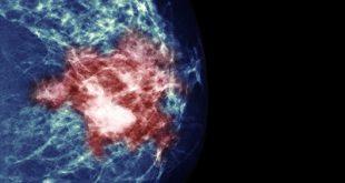 Ο καρκίνος του μαστού και η σημασία της έγκαιρης διάγνωσης. Εγκυμοσύνη και θηλασμός μετά από μαστεκτομή