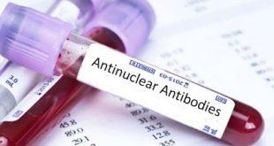 Τι είναι τα αντιπυρηνικά αντισώματα, σε ποια αυτοάνοσα νοσήματα αυξάνονται;