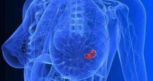 Ορισμένοι θεραπευμένοι καρκίνοι του μαστού μπορεί να επιστρέψουν ακόμη και μετά από 20 χρόνια