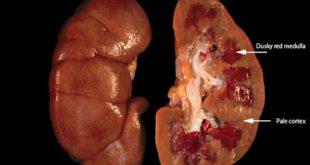 Τι είναι η οξεία νεφρική βλάβη και ποιοι παράγοντες την προκαλούν;