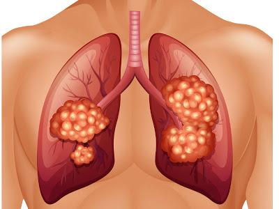 Νέο φάρμακο το atezolizumab, ανοσοθεραπείας, για τον καρκίνο του πνεύμονα και της ουροδόχου κύστης