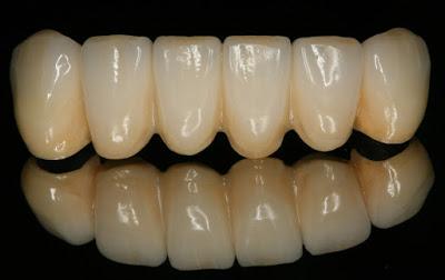 Τι είναι η οδοντιατρική γέφυρα και τι πρέπει να προσέχουμε;