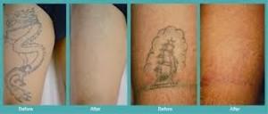 Η αφαίρεση των τατουάζ