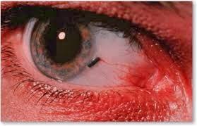 τραυματισμοί στα μάτια