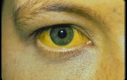 Τι είναι η ηπατίτιδα; Βασικές Πληροφορίες για τις Ιογενείς Ηπατίτιδες