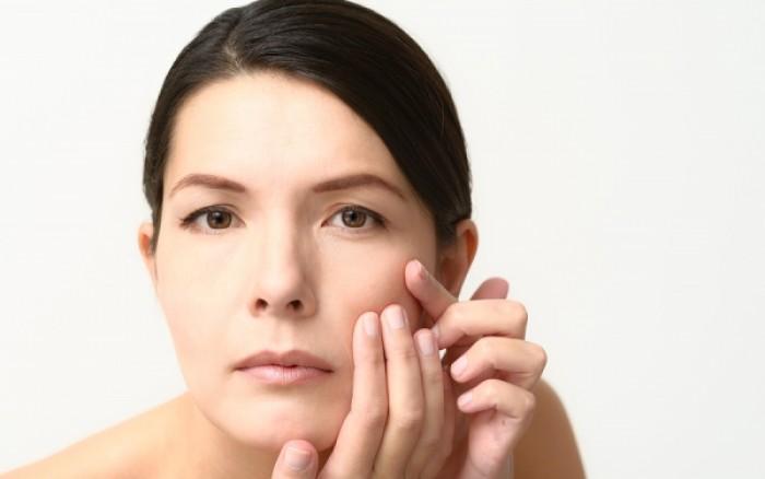 Τι μπορείτε να κάνετε για τις κηλίδες στο δέρμα