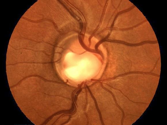 Παγκόσμια Εβδομάδα Γλαυκώματος: Μάθετε για το γλαύκωμα και προστατεύστε τα μάτια σας πριν να είναι πολύ αργά