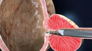 Αφαίρεση του προστάτη (προστατεκτομή) επι καλοήθους υπερπλασίας. με την πρωτοποριακή χειρουργική μέθοδο TURis
