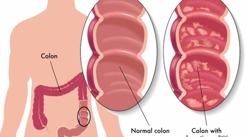 Νόσος του Crohn και ελκώδης κολίτιδα