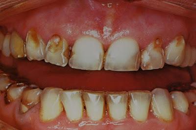 Τι γνωρίζετε για τη διάβρωση των δοντιών; Πότε συμβαίνει και πώς αντιμετωπίζεται;