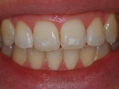 Κηλίδες στα δόντια (Υπενασβεστίωση –Υποπλασία της αδαμαντίνης)