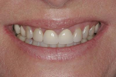 Ποιοι οι λόγοι που τρίβονται τα δόντια; Πώς αντιμετωπίζεται η αποτριβή των δοντιών;