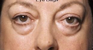 Σακούλες και μαύροι κύκλοι στα μάτια. Που οφείλονται, πρόληψη και φυσικά μέσα για αντιμετώπισή τους