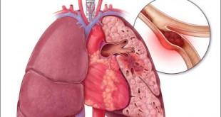 Θεραπεία της θρόμβωσης σε ογκολογικούς ασθενείς με Hπαρίνη χαμηλού μοριακού βάρους