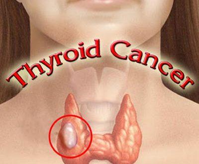Καρκίνος του Θυρεοειδούς. Ποια είναι τα συμπτώματα και ποιες οι αιτίες που εκδηλώνει καρκίνο ο θυρεοειδής;