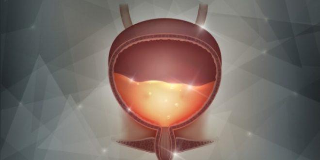 Ουρολοίμωξη: Τα 10 βασικά μέτρα πρόληψης