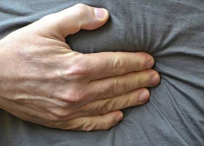 Τι είναι η κήλη του κοιλιακού τοιχώματος; Που οφείλεται και που εντοπίζεται συνήθως; Γιατί πρέπει να αντιμετωπίζεται χειρουργικά;