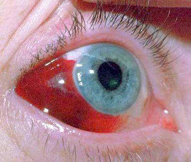 Αίμα από σπασμένα αιμοφόρα αγγεία στο μάτι. Πόσο σοβαρό είναι το υπόσφαγμα;