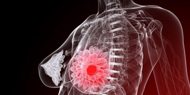 Καρκίνος μαστού: Η διατροφή που αποτρέπει την επανεμφάνιση της νόσου