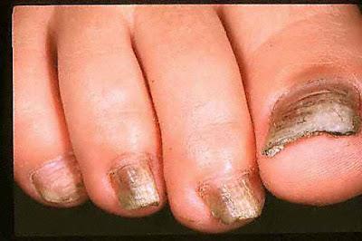 Αισθάνεστε έντονη φαγούρα ανάμεσα στα δάχτυλα των ποδιών σας; Μύκητες νυχιών και δέρματος. Φυσικές θεραπείες