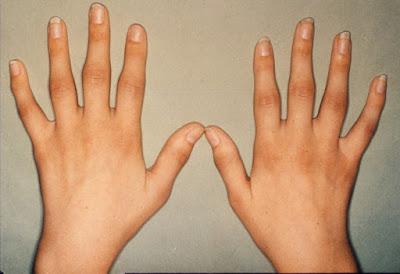 Αρθρίτιδες. Οστεοαρθρίτιδα, ρευματοειδής αρθρίτιδα, ποδάγρα ή ουρική αρθρίτιδα. Τι να κάνετε για να ζείτε καλά με την αρθρίτιδα